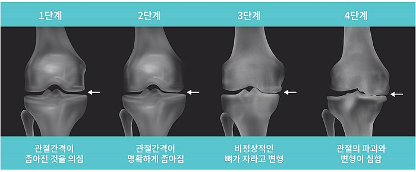 무릎관절염의 단계.jpg