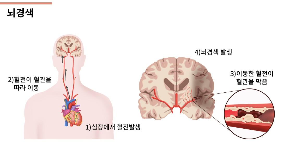 뇌경색.jpg