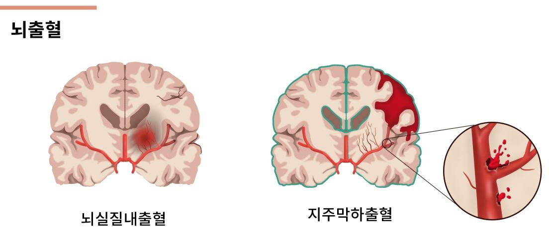 뇌출혈.jpg