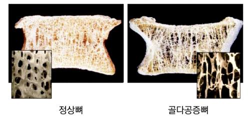 정상뼈, 골다공증뼈_500.jpg