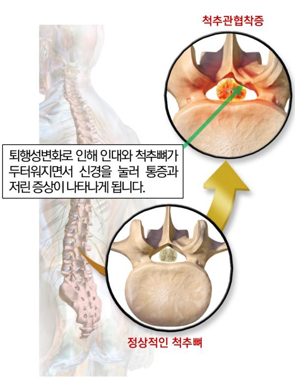 척추관 협착증의 원인_600.jpg