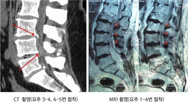 CT&MRI 척추협착_600.jpg