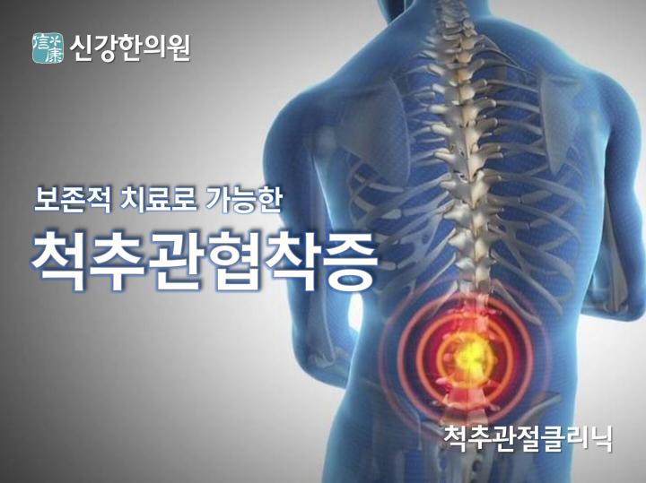 척추관협착증_타이틀_720.jpg